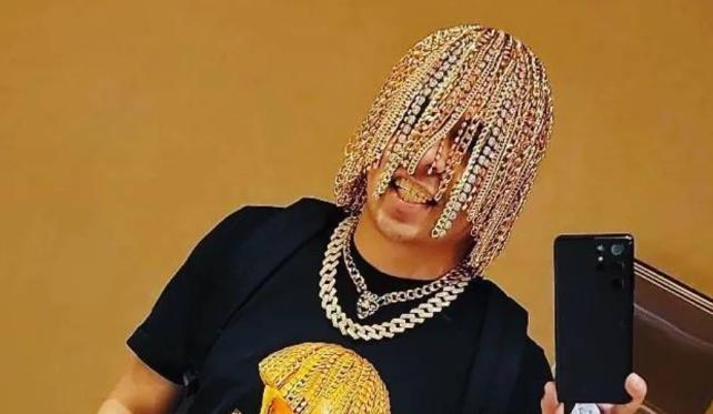 Мексиканский рэпер имплантировал себе в голову золотые цепи - TwitNow.ru